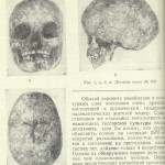 Reader Questions 1: In Search of Archaic Hominin Survivals in Eurasia. Tutkaul Culture